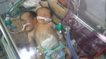 Schrijnend: Siamese tweeling kan Jemen niet uit voor behandeling en sterft