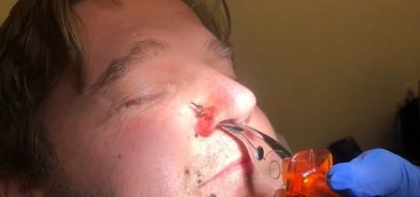 Fietsende Mark krijgt midden in Kampen vishaak in neus: 'Dit moet snel stoppen, straks raakt iemand blind'