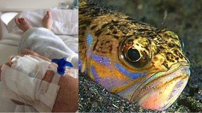 """Isabelle (55) al vijf dagen in ziekenhuis door giftig visje op strand: """"Zeer uitzonderlijke reactie op het gif"""""""