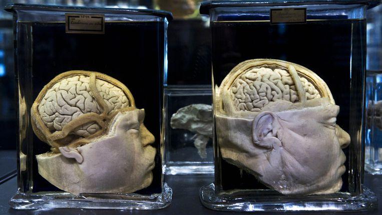 In het anatomisch museum Vrolik in het AMC is een collectie preparaten te zien die zijn verzameld in de negentiende en het begin van de twintigste eeuw. Beeld anp